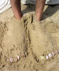 Puchnące nogi żyły wodne