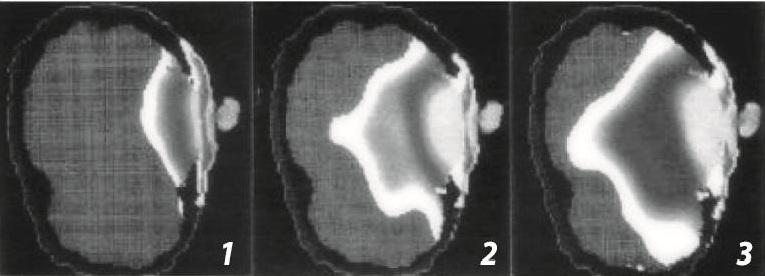 tomografia promieniowanie telefonów komórkowych